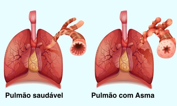 figura que mostra um pulmão saudável à esquerda e um pulmão com asma à direita